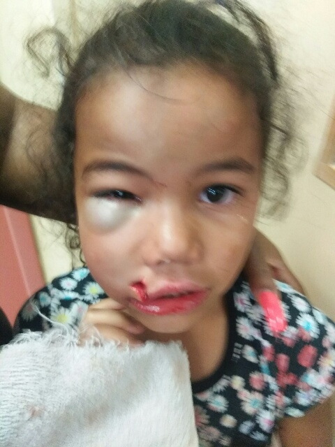 The injuries to this girl's face will require plastic surgery to repair, according to those close to her.